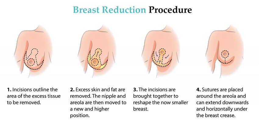 Breast Reduction Explained