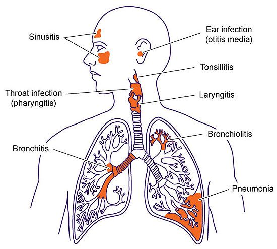 What are Lower Respiratory Infections